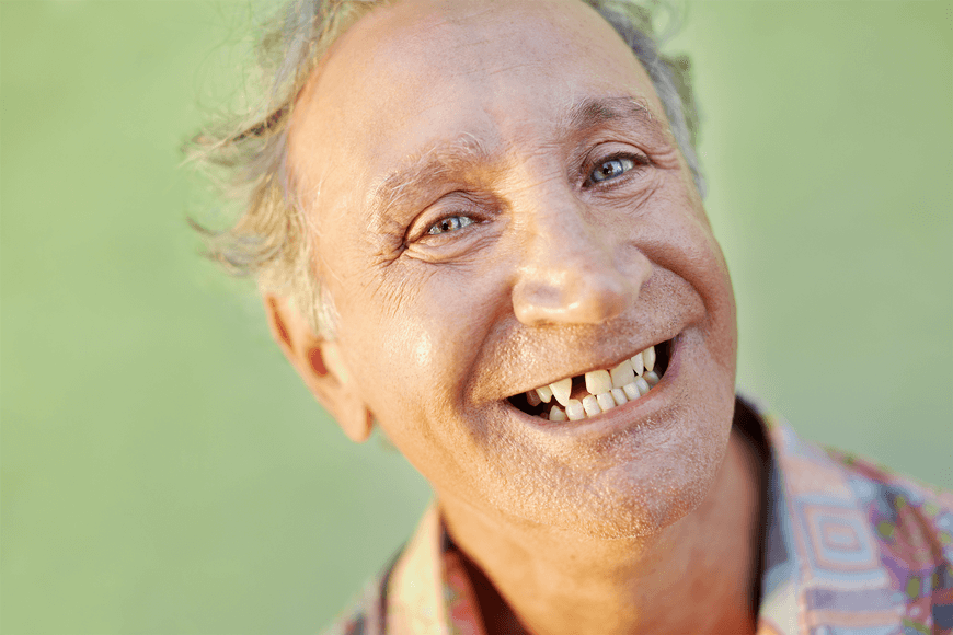 why replacing a lost tooth is important