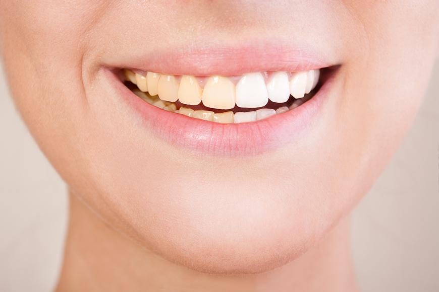 Before-dental-image-dr-joy-dental-clinic-dubai