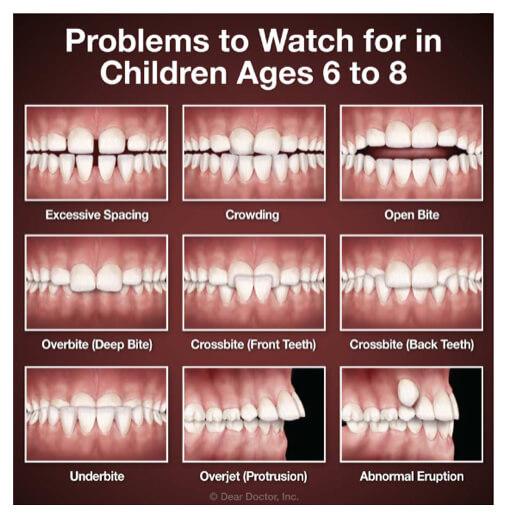 children teeth problems