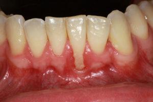 before gum treatment