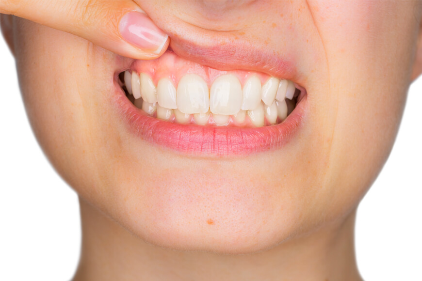 What are the Causes & Treatments of Gingival Recession