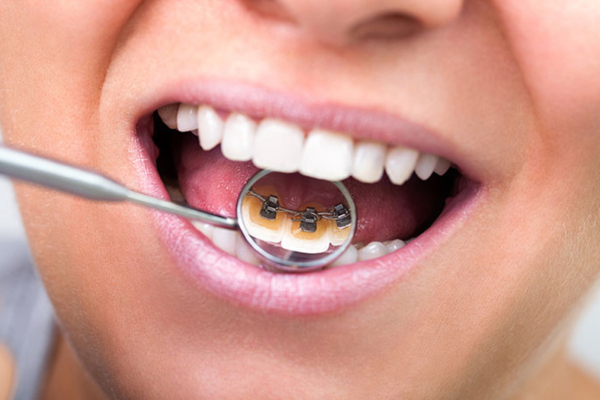 Pros & Cons of Lingual Braces