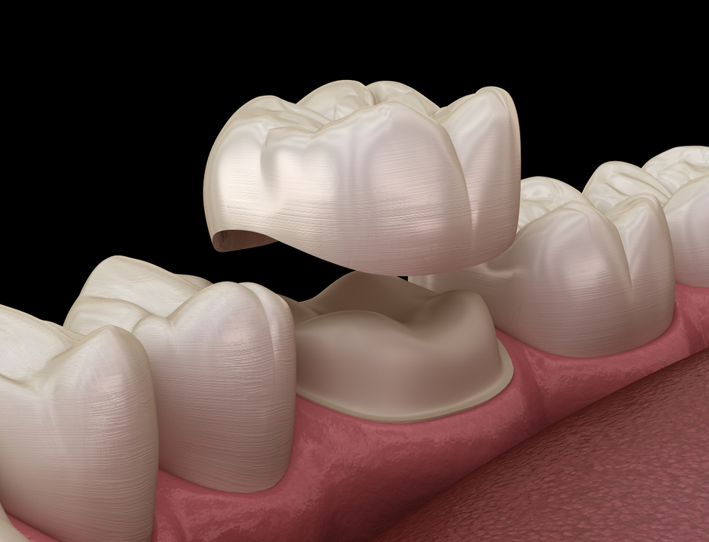 dental crowns in dubai with different types