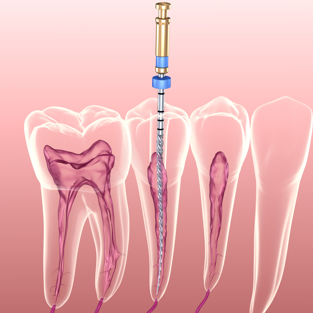 root canal in dubai