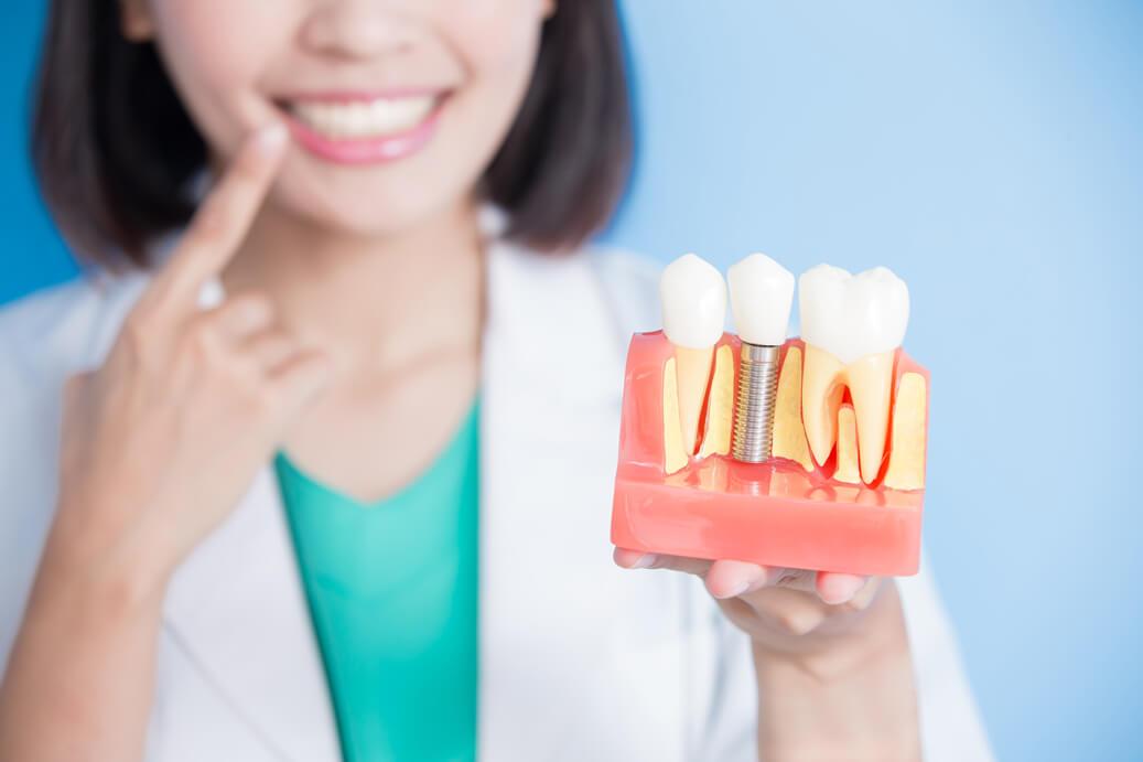 myth-about-dental-implants.jpg