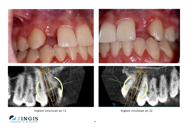 3d dental implants before and after