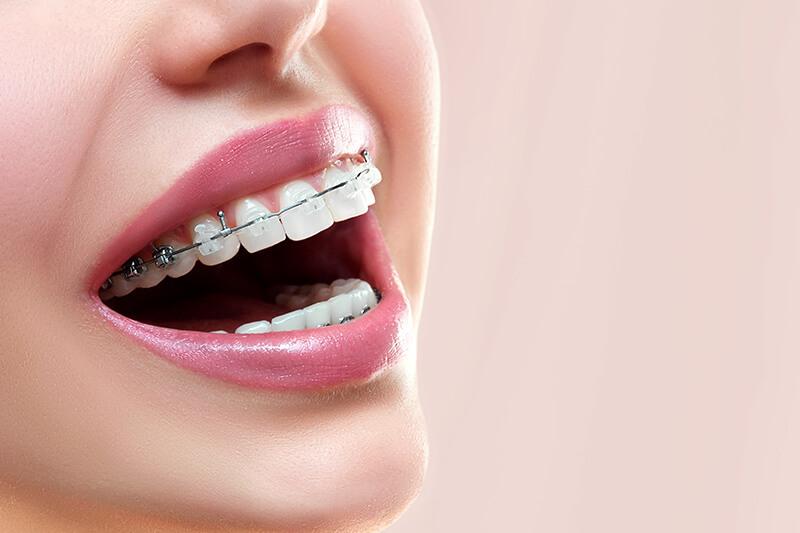ceramic damon braces