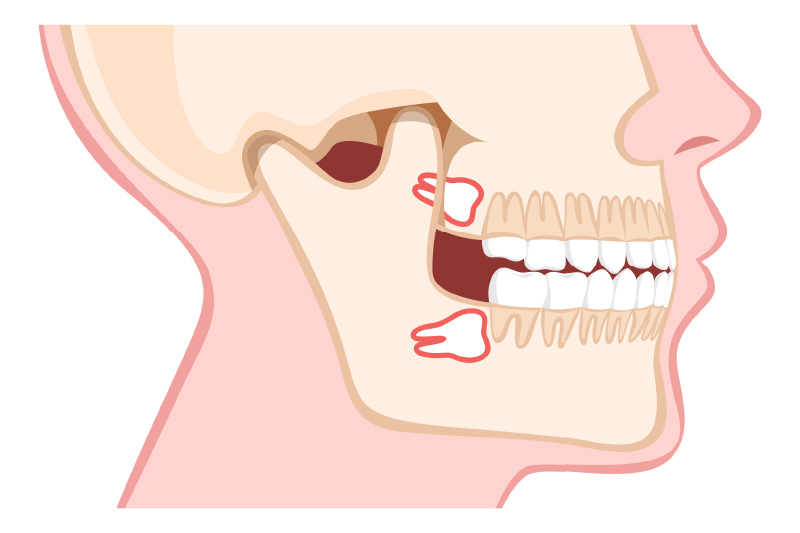 Oral Surgery and Third Molar Removal