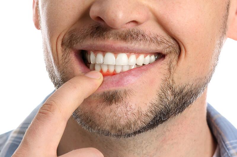 Gingivitis Treatment in dubai