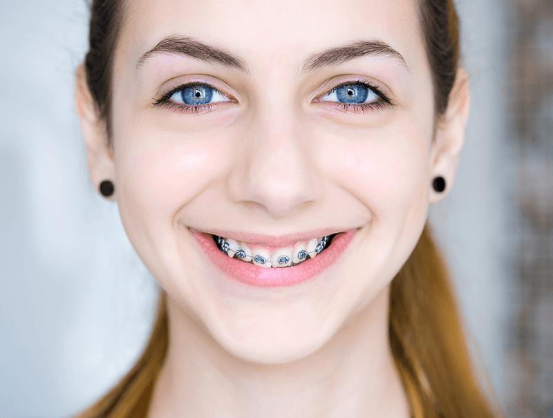 Orthodontics in dubai