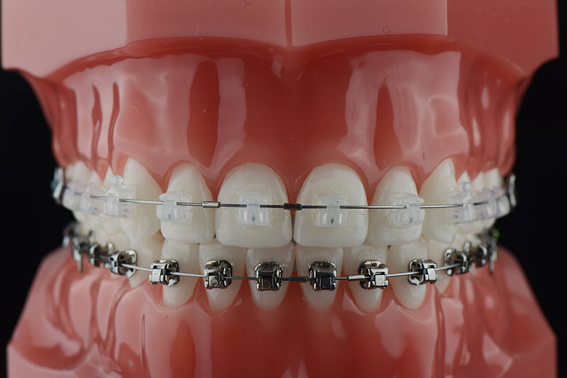 ceramic damon braces dubai