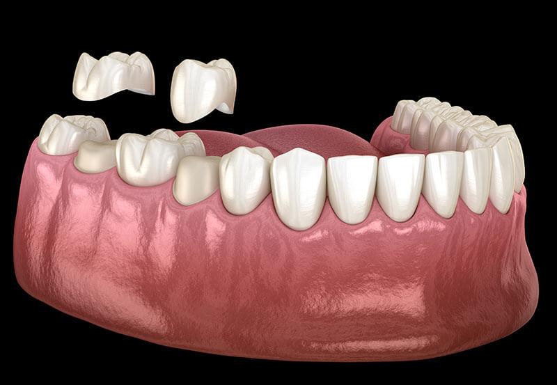 3d dental implant scan