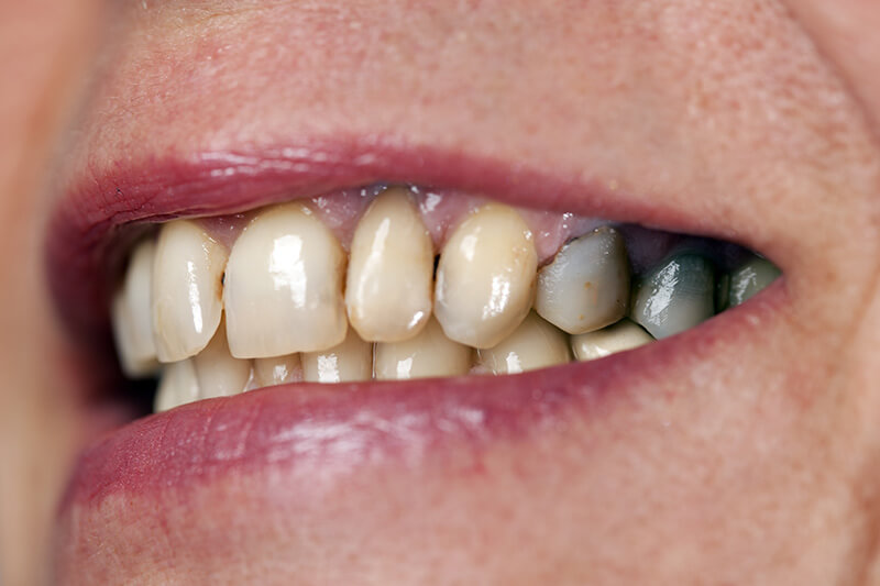 Symptoms of Tooth Decay