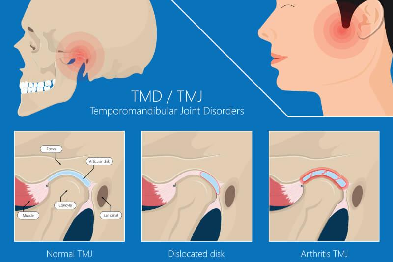 TMJ Treatment in dubai