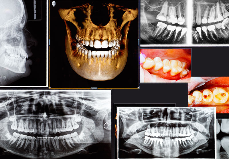 3d guided implant x ray