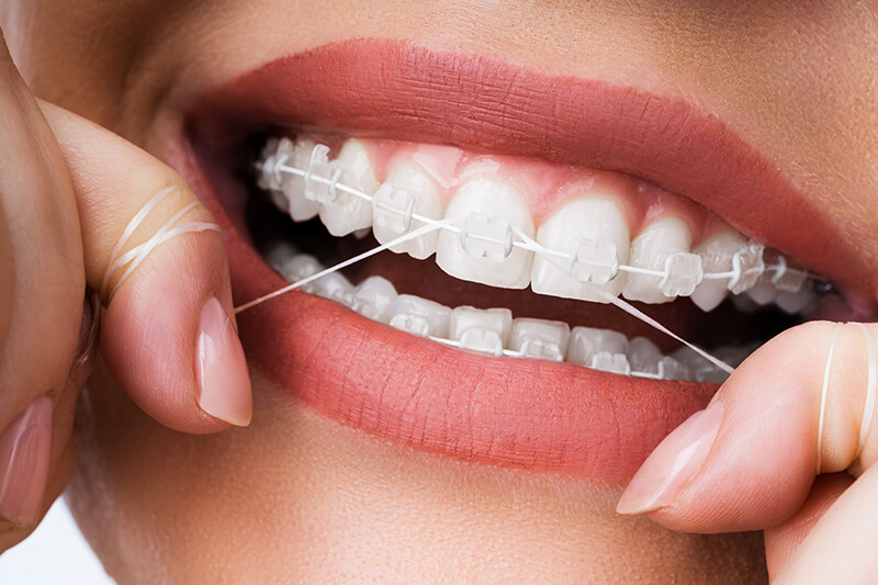 cleaning-teeth-with-flossing