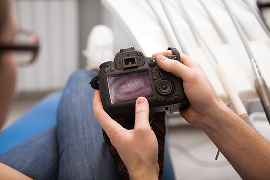 digital smile design dubai