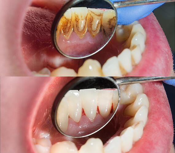 Teeth cleaning near me