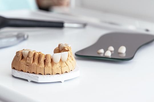 digital smile design in dubai
