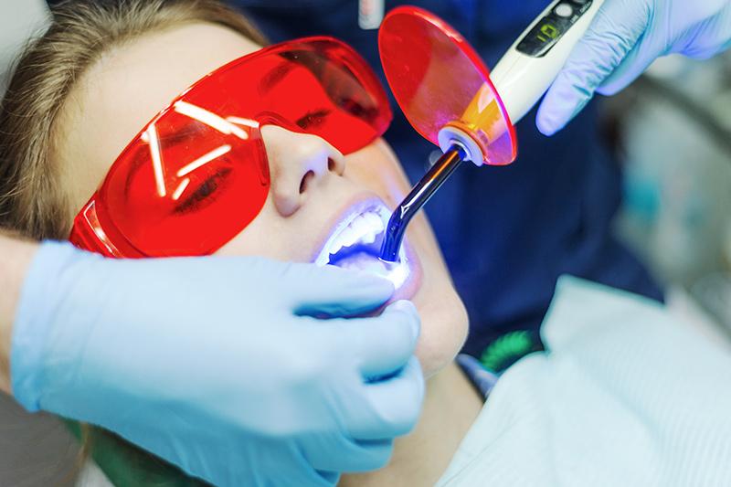 laser teeth whitening dubai
